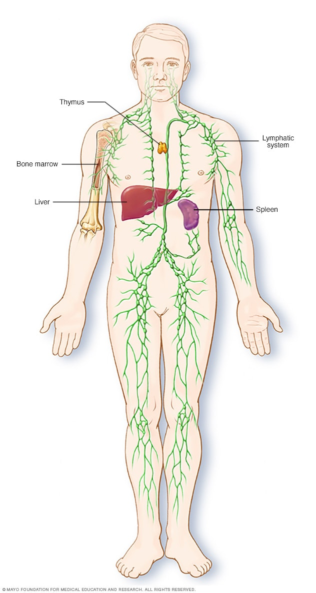 Hodgkin-kór tünetei és kezelése - HáziPatika