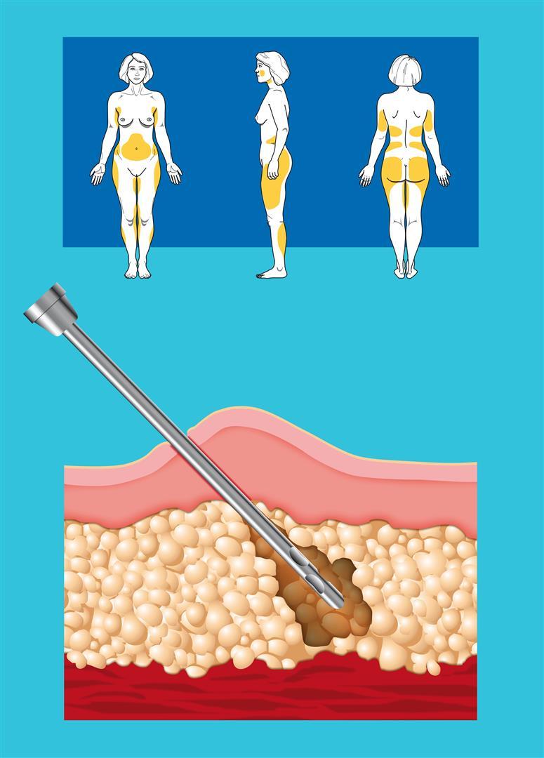 hogyan veszíthetjük el a mellkas zsírját fogyás fal