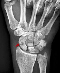 Spondilózis tünetei és kezelése - HáziPatika Gallér csontok és fogyás