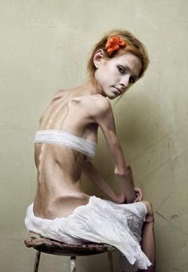 Halálos koplalás - Így ismerheted fel, ha anorexiás a gyereked   pasztorpuli.hu