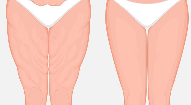 Zsírégetés csodaszerek nélkül: Hogyan történik VALÓJÁBAN?