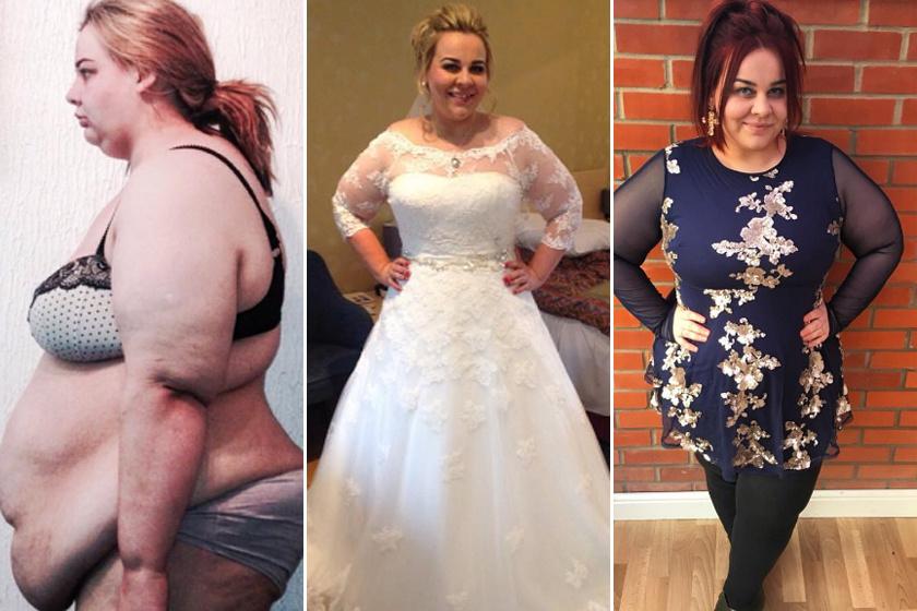 fogyókúrás menyasszonyok előtte és utána okozhat-e súlycsökkenést a sjogren-szindróma