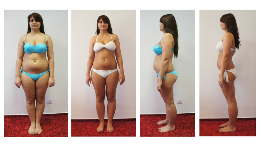 10 kg fogyás 6 hét alatt, Fogyás 6 hét alatt 6 kiló mínusz - Laura története