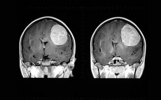 Az agydaganat tünetei és jelei
