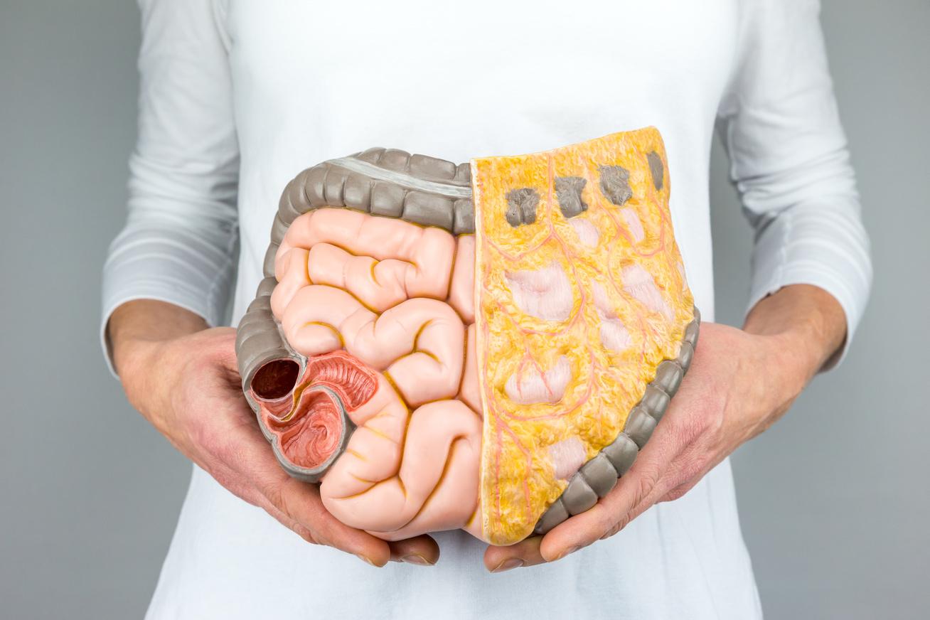kihagyhatja a hasi zsírégetést súlycsökkenést okozó emésztési problémák