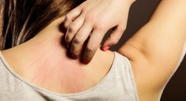 zsírégető allergiás reakció