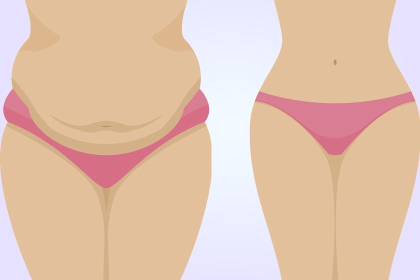 hogyan lehet eltávolítani a hasi zsírt