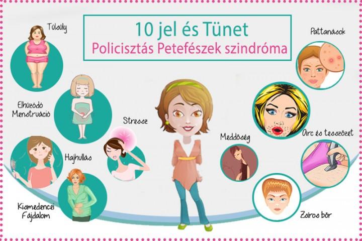 A policisztás petefészek szindróma (PCOS) - Tünetek és kezelés