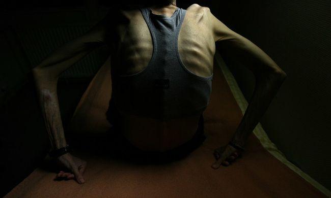 fogyás anorexiás